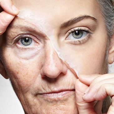 Увядающая кожа лица