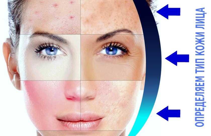 определить свой тип кожи
